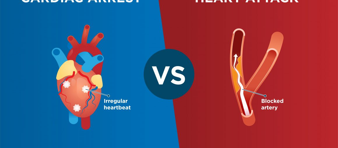 Differences between heart attack and cardiac arrest